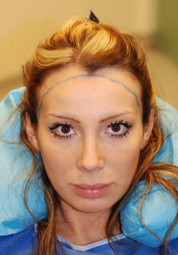 Haartransplantation Haarverpflanzung Eigenhaarverpflanzung Frau