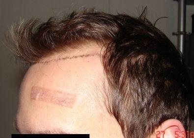 Geheimratsecken nachher minoxidil vorher Haarausfall
